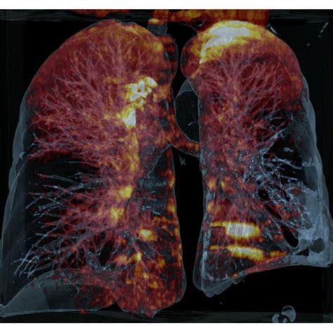 dual energy lung pbv pulmonary embolism bothside siemens