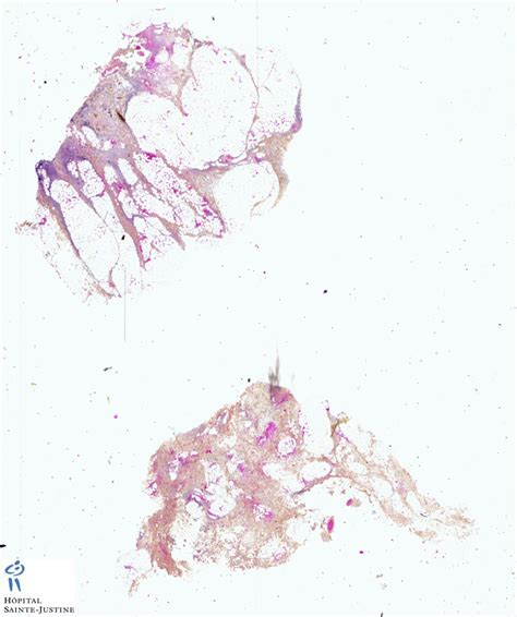 cellulitis c section cellulitis humpath com human pathology