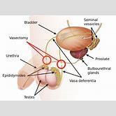 vasectomy-diagram