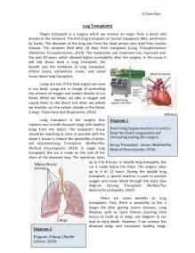Organ Donation Essays by One World Essay Organ Transplant