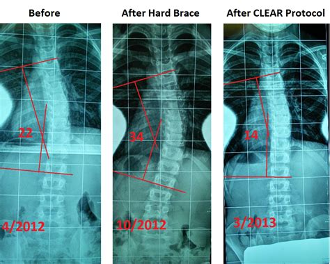 Denver Detox Number by Denver Scoliosis Treatment Schroth Clear Institute