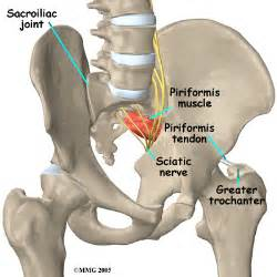 Piriformis syndrome central orthopedic group