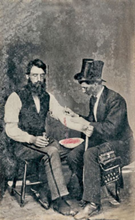history of blood banking | community blood center