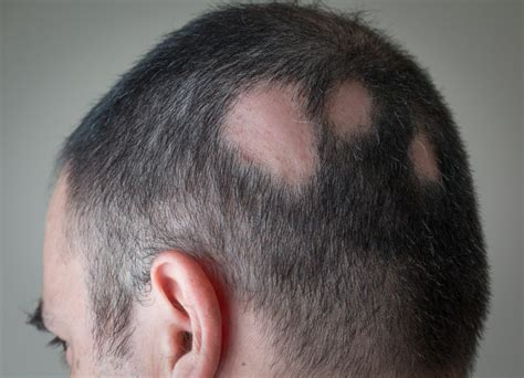 how to cut alepecia areata hair what are the different types of alopecia areata alopecia
