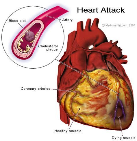 heart attack symptoms and treatment health dictionary