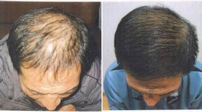 bio hair adalah bio hair 123 obat penumbuh rambut permanen no 1 share