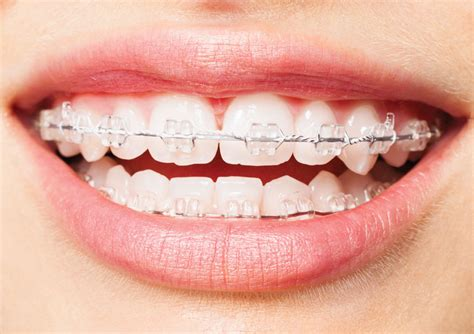 clear braces with color braces are a growing trend find out why and why now