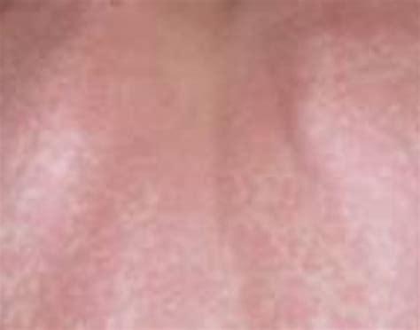 sun poisoning from tanning bed pin sun poisoning rash on pinterest