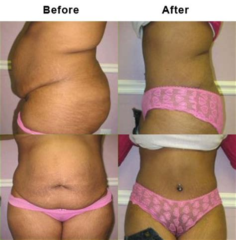 lipo after c section tummy tuck or lipo chicago tummy tuck and liposuctions