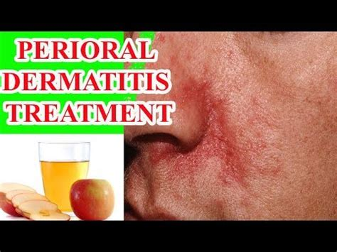 perioral dermatitis treatment home remedies for perioral