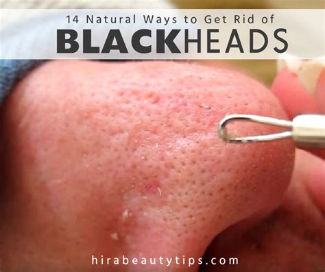 get rid of 14 ways to get rid of blackheads on nose