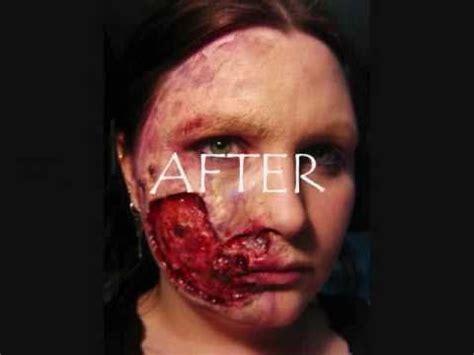 transformation  flesh eating disease youtube