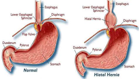 diagram of hiatal hernia 7 secret foods to fix hiatus hernia