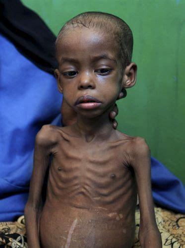 imagenes de niños que pasan hambre hostenses 191 qu 233 es el hambre cr 243 nica