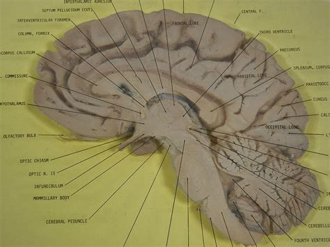 midsagittal section brain brain sagittal section quotes