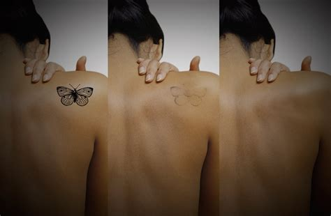 laser tattoo removal experience laser removal blackpool the fylde clinic