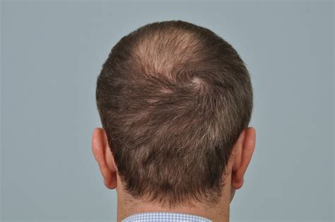 haircut after hairtramsplant haircut after fut hair transplant om hair