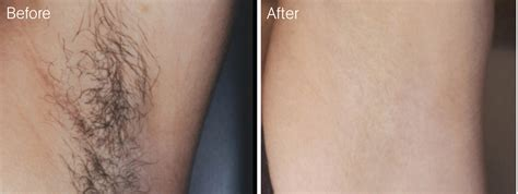 male genital hair removal before after photos laser hair removal nima