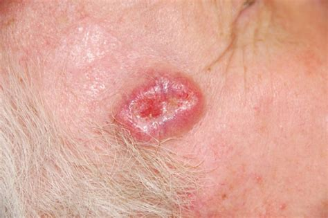 basal cell tumor basal cell carcinoma symptoms causes diagnosis and treatment health news