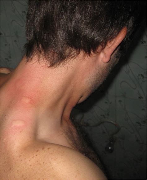 bed bug bites on neck bedbugs
