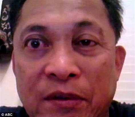 dr victor oyas: man cured of his 20 year facial twitch in