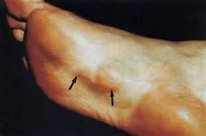 holistic ayurveda fibromatosis