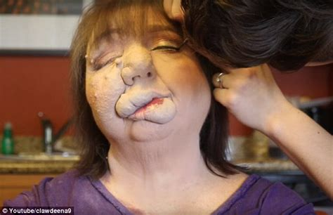 makeup artist does mom with birthmark s makeup video youtube video shows how mom uses make up to hide port wine