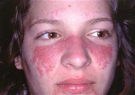 lupus cedars sinai
