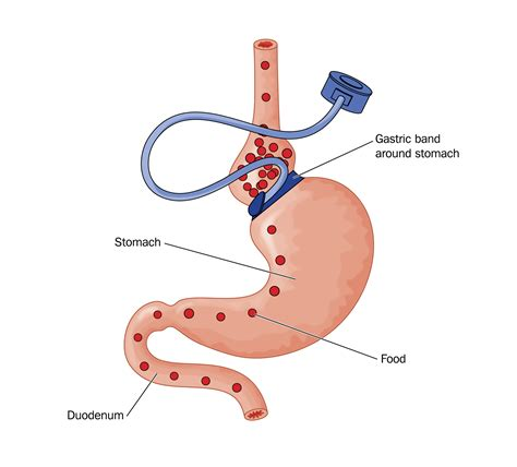 gastric bypass diagram the cost of the gastric band in the uk weight loss
