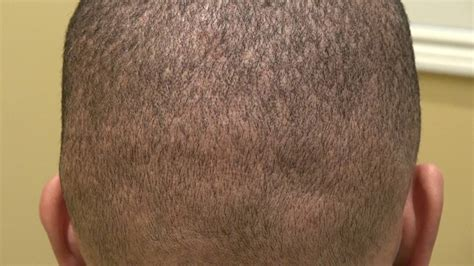 hair style for men haur transplant scar fue donor scar 1 year follow up mens hair loss and balding