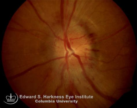 pattern reversal glaucoma neuritis june 2015