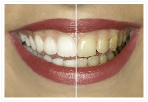 cabinet dentaire casablanca cabinet dentiste tajmouati