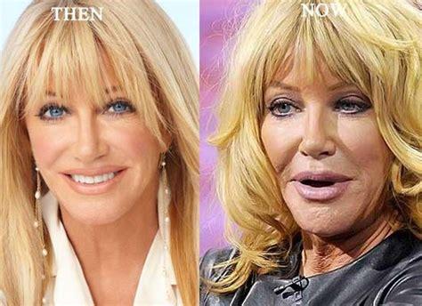 lisa breckenridge new nose lisa breckenridge plastic surgery
