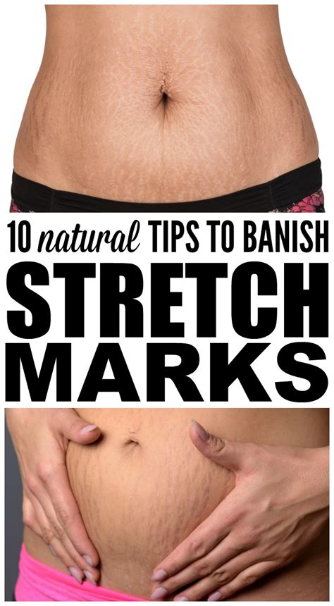 how to get rid of stretch marks naturally 10 tips that work