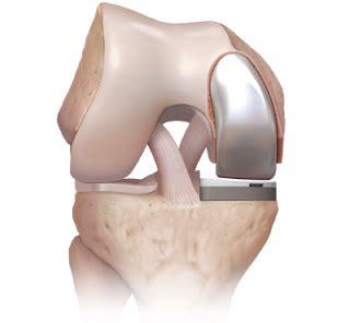 centre for orthopedic surgeons & sports medicine: knee
