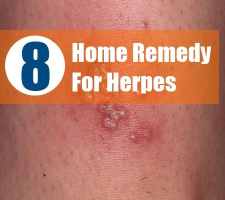 aromatherapy at nature s gift herpes virus how to take