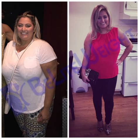 weight loss 6 months after gastric sleeve testimonials beliteweight