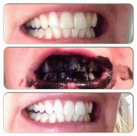 teeth activated charcoal     pinterest