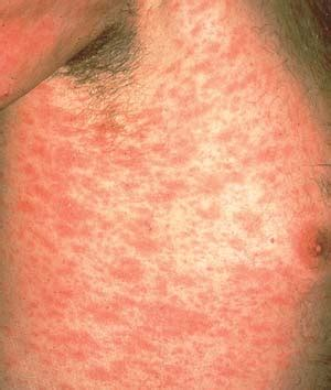 christmas tree virus rash pityriasis rosea diseases conditions 5minuteconsult