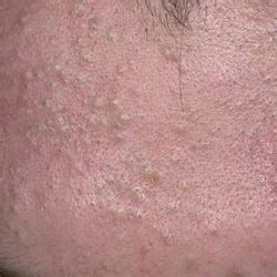 everything you never knew about whiteheads overcoming acne
