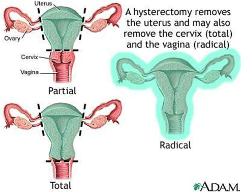 hysterectomy diagram hysterectomy the basics burrell education