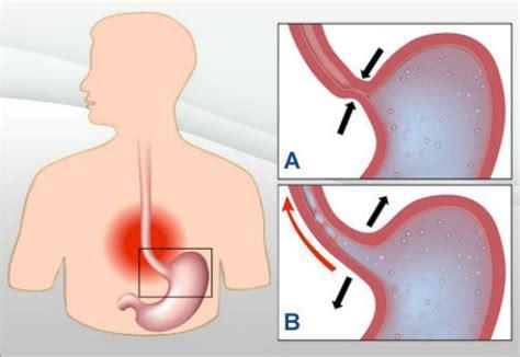 esofagite dieta alimentare 7 rimedi naturali per trattare l acidit 224 di stomaco e il