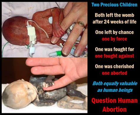 50 best images about graphic images of abortion victims on