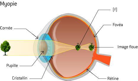 correction myopie lentille optique la physique des lunettes ooreka 188   myopie main 2764626