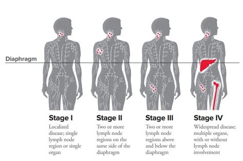 lymphoma stages hodgkin lymphoma staging leukemia and lymphoma society