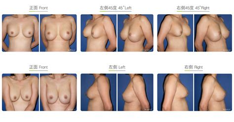 subfascial breast augmentation pocket conversion breasts surgery before after