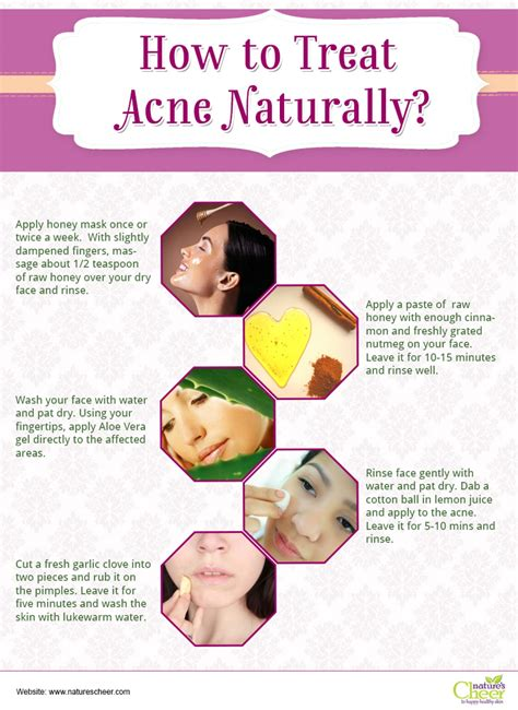 How To Cure Acne Naturally how to treat acne naturally visual ly