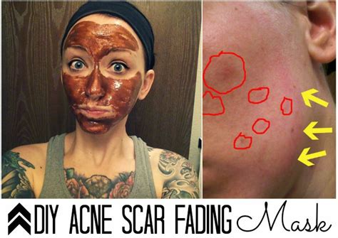diy mask for acne scars the busy bee diy acne scar mask