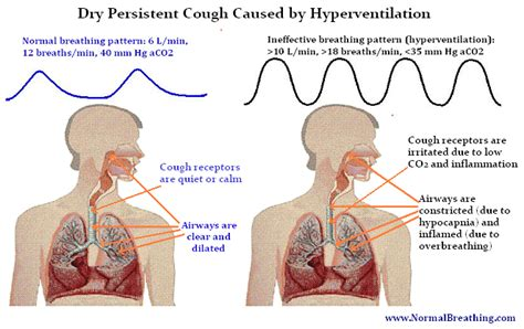 dry couch cough causes for morning dry coughing and acute or