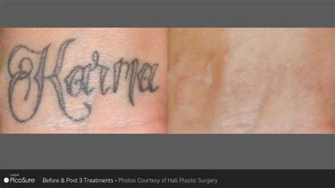 tattoo removal in nc laser removal before and after carolina